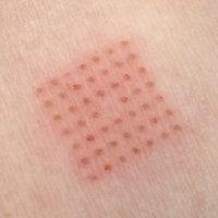 laser skin pattern